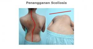 Terapi Scoliosis Semarang