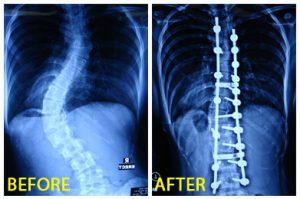 spinecenter-skoliosis