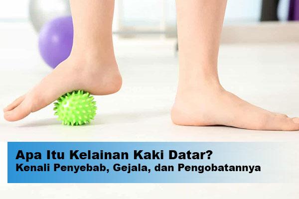 terapi kaki datar